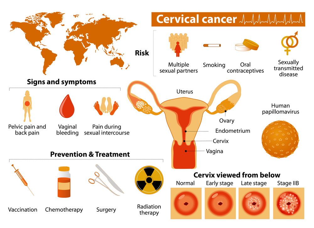 Recent Study Shows that Cervical Cancer Has a Higher Death Rate than Experts Previously Thought