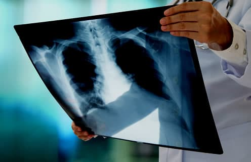 Lung Cancer Misdiagnosis